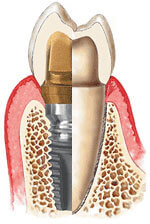 Dental implants mimic the natural tooth root.