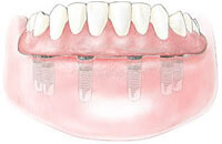 Dental Implant Supported Dentures are firmly anchored to the jawbone. This helps to prevent bone loss and mimics the feel of natural teeth.